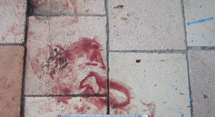 «Попросил выпить»: в одном из общежитий Саранска мужчине сломали пять ребер и нос